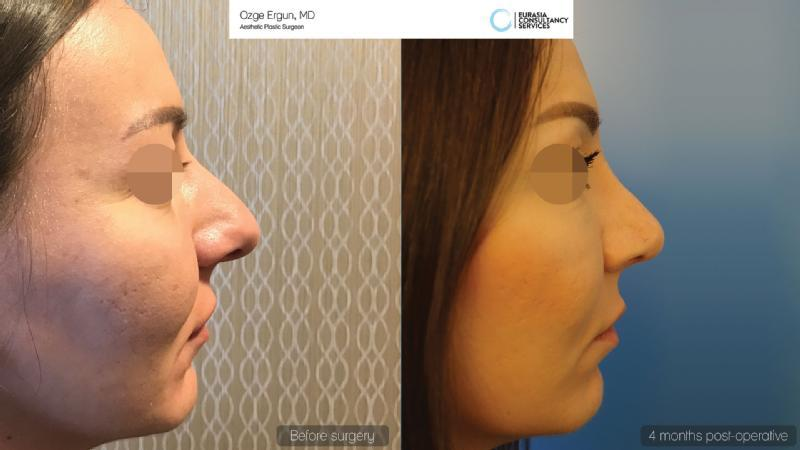 Images from Rhinoplasty in istanbul